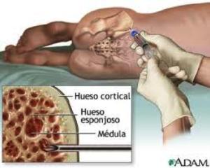 Aspirado de medula ósea